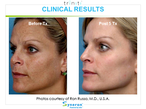 skin-rejuvenation-